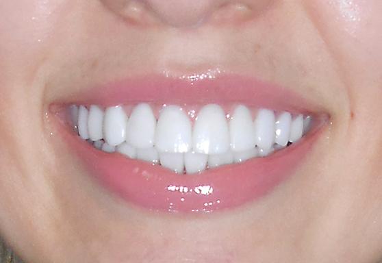 как крепятся виниры на передние зубы