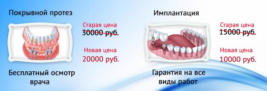 Протезирование зубов в орске цены