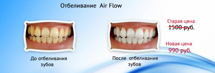 Отбеливание зубов в омске цены отзывы