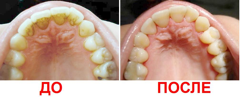 Удалить зубной налет домашних условиях - Automee-s.ru