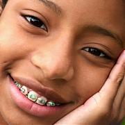Сколько стоят брекеты на зубы? (Ортодонтия)