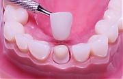 Реставрация зубов - стоимость