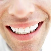 Отбеливание зубов Air Flow - цена, методы